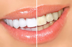 otbelivanie-zubov1